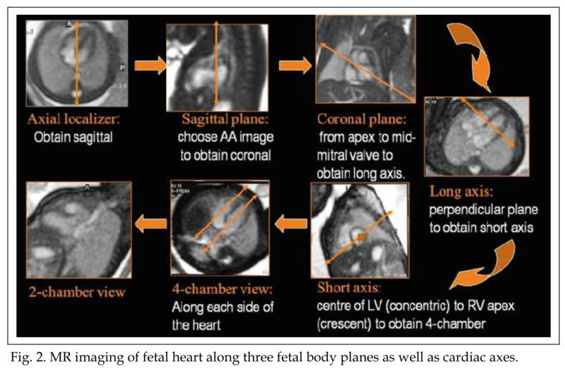 Fetal Cardiac MRI Anatomy | MR Imaging Research - Joshua FP van Amerom